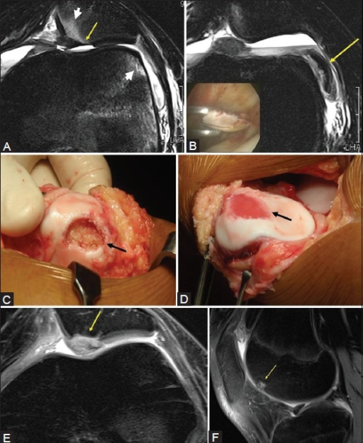 Patellofemoral dislocation treated with ACI; MOCART 85. (A) MRI shows patellar osteochondral lesion (arrow) and bone contusions (arrowheads). (B) Corresponding loose osteochondral fragment. Inset shows arthroscopic fragment removal; cartilage biopsy for harvesting chondrocytes was performed at same setting from non-weight-bearing lateral femoral condyle (stage 1 surgery). (C) Open ACI 6 weeks later (stage 2), intraoperative image shows debrided defect (D). Post ACI image shows grafted chondrocytes filling defect. (E) Post ACI MRI shows hypertrophied repair tissue. (F) Cartilage harvest site
