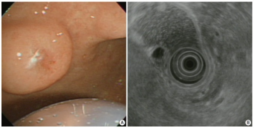 (A) Upper gastroesophageal endoscopy reveals a pedunculated polyp in the anterior wall of the gastric angle. Note the polyp is covered by normal-appearing mucosa. (B) Endoscopic ultrasound reveals a heterogeneous mixed echoic lesion in the submucosal layer.