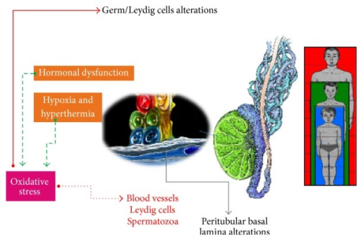 Oxidative stress generated by conditions of hypoxia, hyperthermia, and hormonal dysfunction observed in varicocele could have negative effects on germ and Leydig cells. Moreover, it could also have critical actions on blood vessels and spermatozoa of growing adolescents.