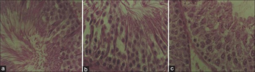 Light microscopy (hematoxylin and eosin staining) of a cross section of the seminiferous tubule (×100) (a) normal seminiferous tubule with spermatogonia near the basement membrane, and spermatocytes, round and elongated spermatid and mature spermatozoa in the lumen after spermiogenesis (release of mature spermatozoa into the lumen). (Johnsen score = 10) (b) normal spermatogenesis as in (a) after zinc supplementation (Johnsen score = 10) (c) scarcity of spermatozoa in the lumen consistent with spermatogenic arrest associated with zinc deficiency (Johnsen score = 6)