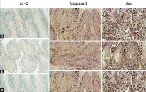 Immunohistochemical staining with Bcl-2, caspase-3 and Bax (×250) of rats fed normal diet (a), zinc deficient diet (b) and zinc supplementation diet (c). These staining reactions show the following: *Intense staining with Bcl-2 of mature spermatozoa *Intense staining with Bax (black) and caspase-3 (red) consistent with increased apoptosis of the early germ cells such as spermatogonia, spermatocytes and spermatids associated with zinc deficiency *intense staining with Bcl-2 of mature spermatozoa in the seminiferous tubule of rats fed with zinc supplementation diet