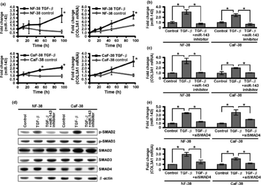 Effect of transforming growth factor-β (TGF-β) on microRNA-143 (miR-143) and collagen type III expression. (a) Quantitative RT-PCR analysis of miR-143 and collagen type III mRNA in normal gastric fibroblasts (NF-38) and cancer-associated fibroblasts (CaF-38) after the indicated times of TGF-β1 treatment. (b) MicroRNA-143 expression levels in NF-38 and CaF-38 in the absence or presence of TGF-β1 with or without miR-143 inhibitor. (c) Collagen type III mRNA expression levels in NF-38 and CaF-38 in the absence or presence of TGF-β with or without miR-143 inhibitor. (d) Expression levels of TGF-β family signal components were determined by Western blot analysis. (e) Quantitative RT-PCR analysis of miR-143 and collagen type III mRNA in NF-38 and CaF-38 with SMAD4 siRNA. Results are mean ± SE of triplicate measurements. *P < 0.05.