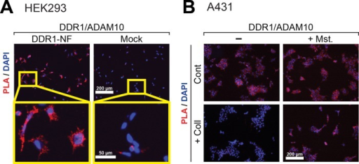 DDR1 is in a complex with ADAM10 on the cell surface. (A) HEK293 cells stably expressing DDR1-NF were subjected to PLA using anti–DDR1 ectodomain and anti-ADAM10 ectodomain antibodies. The PLA signal is shown in red. Nuclei were stained with DAPI (blue). Scale bars, 200 and 50 μm. (B) A431 cells were stimulated with collagen I for 24 h in the presence or absence of 10 μM Mst and subjected to PLA as in A. Scale bar, 200 μm.