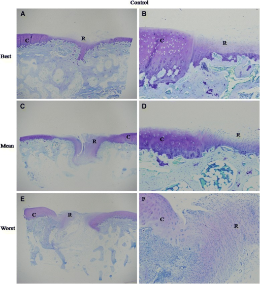 Best, mean and worst results of safranin O staining in experimental (A, C and E) and control group (B, D and F) at 12 weeks. (A) The repair tissue showed homogenous intense safranin O staining. Tidemark formation was observed, and subchondral bone formation was good. The surface was not smooth, with fibrous tissue existing. (C) The staining of the repair tissue was homogenously intense. No fissues or cracks were seen. But, no tidemark formation was observed. (E) Subchondral bone formation was poor with a large crack in the center of the repair tissue. But, safranin O staining was still intense in the extracellular matrix (ECM) of the repair tissue. No tidemark formation was found. (B) The ECM of the repair tissue was stained slightly and heterogeneously. The surface was not regular. No tidemark formation was seen. Subchondral bone formation was not good. (D) The repair tissue was stained negatively. No tidemark formation was seen, and subchondral bone formation was poor. (F) Little subchondral bone was seen. Safranin O staining was negative in the ECM of the repair tissue. All the magnification was 20X.