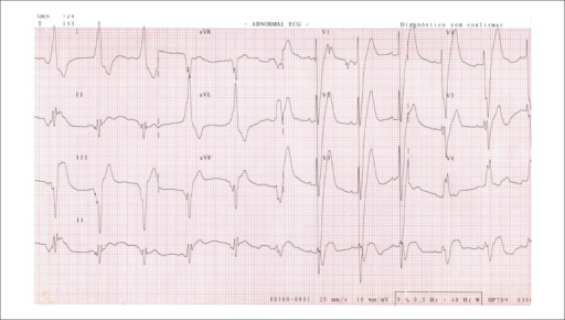 Electrocardiogram. Sinus rhythm, left bundle branch block, with probable electricalinactivity in the lower and anteroseptal wall.