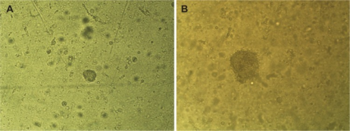 AMJ13 cells growing in an anchorage-independent fashion using soft agar colony assays.Notes: (A) AMJ13 cells readily formed colonies (93.85 µm in diameter) within 6 days. (B) After 14 days, the colonies continue to expand, reaching 282.75 µm in mean diameter. This result demonstrates that AMJ13 cells undergo efficient anchorage-independent growth.