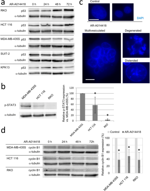 The way of cell death induced by AR-A0114418.(a) Protein expression of p53 after AR-A014418 treatment. Cells were harvested for western blot after treatment with 20 μM AR-A014418 for indicated periods. (b) Phospho-STAT3 expression in sensitive cell lines. Band intensities were determined by densitometry and the expression level relative to that in MDA-MB-435S cells was determined. Average of three independent experiments is shown in the right graph. Error bars indicate 95% CIs. (c) Morphology of nuclei in MDA-MB-435S after AR-A0114418 treatment. Cells were fixed and stained with DAPI after 48 h treatment with 20 μM AR-A014418. (Scale bar = 10 μm) (d) Protein expression of cyclin B1. Cells were harvested for western blot after treatment with 20 μM AR-A014418 for indicated periods. Right graph shows relative cyclin B1 expression compared with control after 72 h treatment. Average of three independent experiments is shown. Error bars indicate 95% CIs. (*p < 0.001).