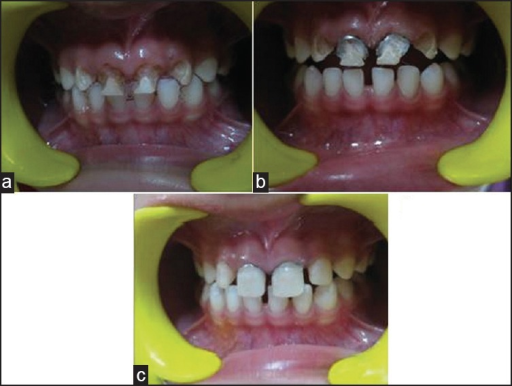 Group IV – (a) preoperative (b) band cementation in 51, 61 (c) postoperative.