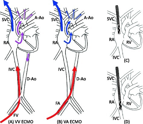 Vascular access and cannula position. Panel (A) shows the circulatory kinetics of VV ECMO with drainage from the right internal jugular vein (RIJV) and infusion to the femoral vein (FV). The oxygenated blood from the infusion cannula (red arrow) is mixed with the venous blood in the inferior vena cava (IVC) and right atrium (RA). The mixed blood (purple arrow) flows through the lungs to the arterial side. Panel (B) shows the circulatory kinetics of VA ECMO with drainage from the RIJV and infusion to the femoral artery. The venous blood (blue arrow) flows through the lungs to the upper body without oxygenating the blood if the lung function is poor. Panel (C) shows the correct position of the draining cannula tip for VV/VA ECMO with drainage from the RIJV and infusion to the femoral vein/artery as panels (A, B). The tip should be located in the upper or middle RA to drain blood with a lower O2 saturation from the superior vena cava (SVC). Panel (D) shows the tip locating the lower position than panel (C), where the blood from the IVC is mostly drained. Because the blood from the IVC contains more oxygen than that from the SVC, the O2 saturation of the drained blood becomes higher; consequently, the efficiency of oxygenation by ECMO is decreasing. A-Ao denotes ascending aorta, D-Ao descending aorta, RV right ventricle, and FA femoral artery.
