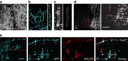 CF morphology in the normal cerebellum and CF collateral sprouting induced by 3-AP injection into the inferior olive.(a) Image of normal CFs in vivo from a Nefl-EGFP tg mouse (no 3-AP injection) as viewed from a window placed over lobule VII of cerebellar cortex using two-photon microscopy. All in vivo images (a,c,d) are maximum projections showing top-down views of CFs in the molecular layer. Scale bar, 100 μm. (b) Image of normal CFs in a fixed cerebellar slice from a Nefl-GFP tg mouse. View of CFs in the molecular layer in para-sagittal plane (left) and view of another CF in transverse plane (right). (c) Image of a CF ladder in vivo (left) and its trace (right) in which red line represents the main stalk and the blue lines emerging from the main stalk represent the rungs of the CF ladder. (d) A representative image of surviving CFs in vivo from a Nefl-EGFP tg mice 1 week after 3-AP injection as viewed from a window placed over lobule VII of cerebellar cortex using two-photon microscopy. (Left) Red square shows site of collateral sprouting magnified in the images on the right. (Right) Red arrows mark collaterals in the magnified view. As shown in this example, collateral sprouting was observed 1 week after 3-AP injection in all animals (n=12). Scale bar, 50 μm. (e) Immunolabelling of synaptic sites with VGLUT2 (red) in CFs (anti-GFP, cyan) 2 weeks after 3-AP injection (n=2 animals). The molecular layer of lobule VIII in a fixed coronal section is shown. Red square shows site of collateral sprouting magnified in the images on the right. Note that new CF ladders (white arrowheads) are all VGLUT2-positive regardless of their ladder length and distance from their origin. Scale bar, 50 μm.