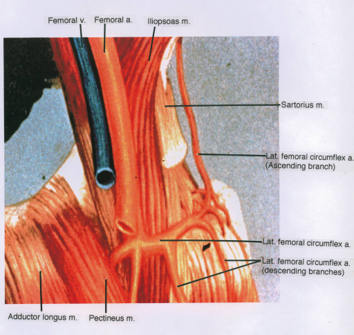 iliopsoas muscle; sartorius muscle; lateral femoral circumflex artery; pectineus muscle; adductor longus muscle