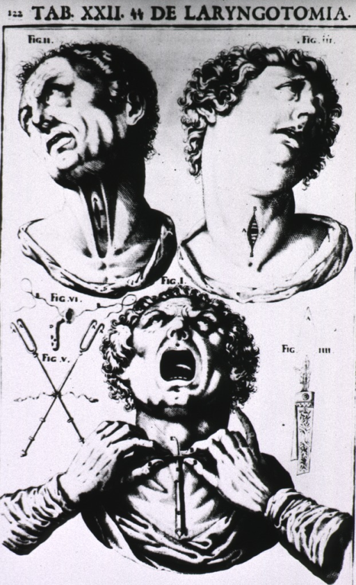 <p>Three views of the head and throat of human figures.</p>