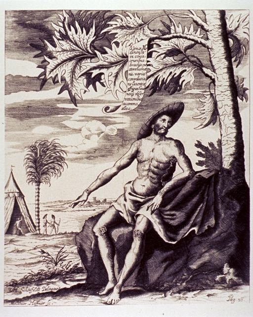 <p>Nematodes are visible in the arms, legs, and chest of a man sitting under a tree.</p>