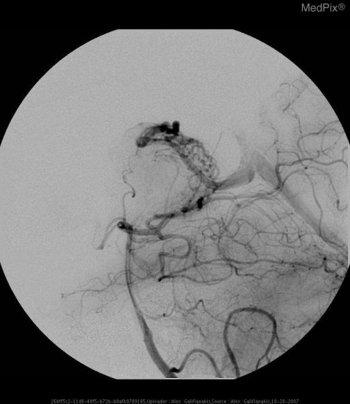 Angiogram prior to gamma knife therapy demonstrating an AVM measuring approximately 1cm in diameter predominantly fed by left lateral posterior choroidal artery.