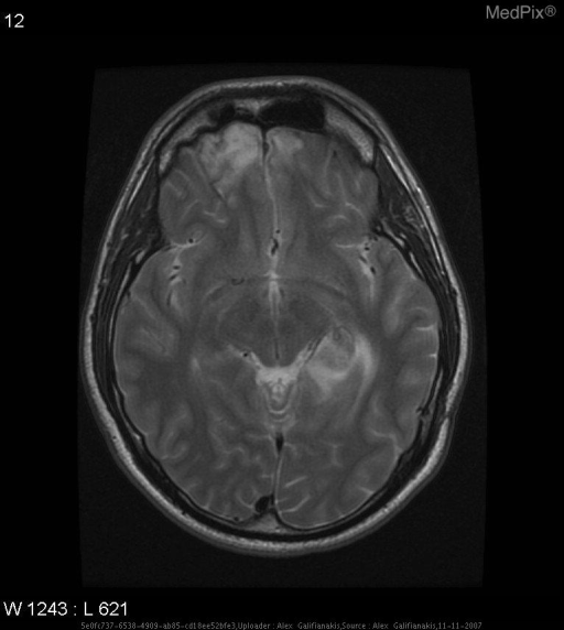MRI on initial presentation revealed nonopacifying flow voids in the region of the choroid plexus of the left lateral ventricle with extension into the left thalamus. Also noted is evidence of contusion in the right frontal lobe.