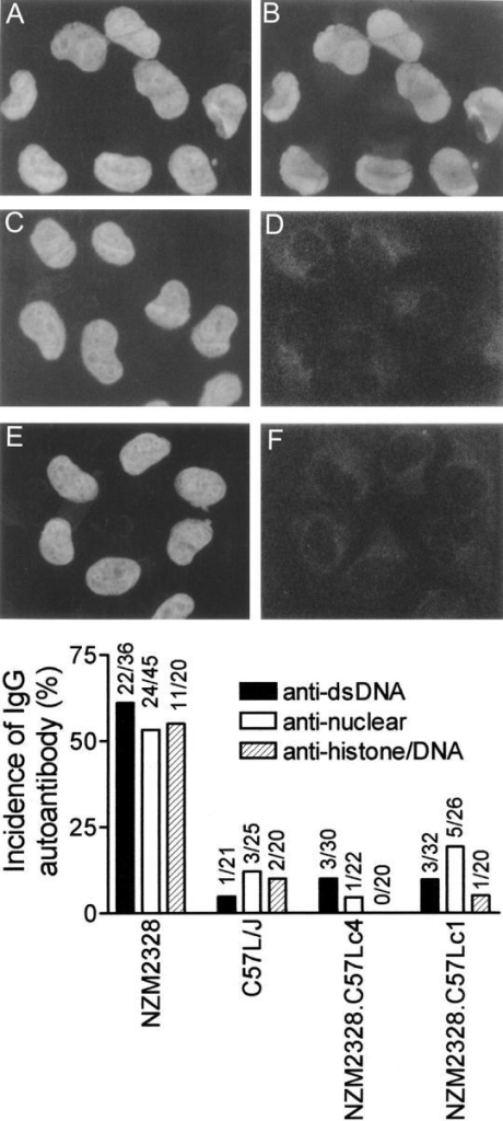 Marked reduction of circulating anti-dsDNA, antinuclear, and antinucleosome Ab in NZM.C57Lc1 and NZM.C57Lc4 congenic lines in comparison with NZM2328. Staining of HeLa cell nuclei by DAPI are seen in A, C, and E. The right side of the figure shows the presence of ANA in the serum of NZM2328 (B) but not in the sera of NZM.C57Lc1 (D) and NZM.C57Lc4 (F). Although not shown, the majority of the sera from C57L/J were not positive for ANA. On the bottom, frequencies of the presence of anti-dsDNA, antinuclear, and antihistone/DNA Ab in these strains are summarized.