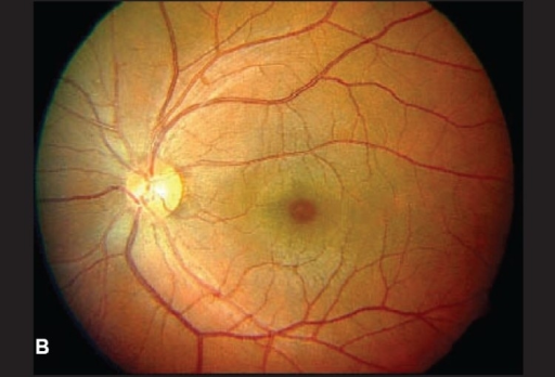 b left eye with normal macula at the end of one week open i