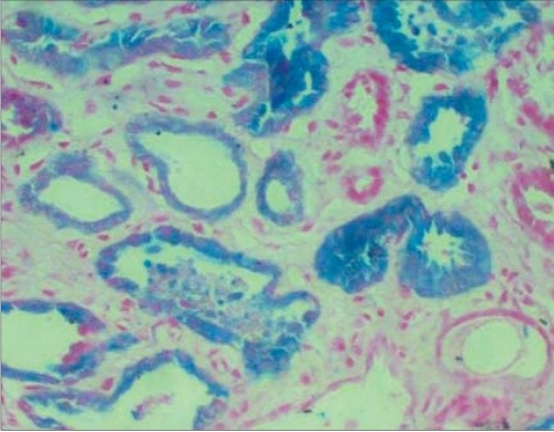 Kidney biopsy: Light microscopy with Perlaes stain (Prussian blue stain) showing uptake of stain by intratubular casts as well as tubular cells