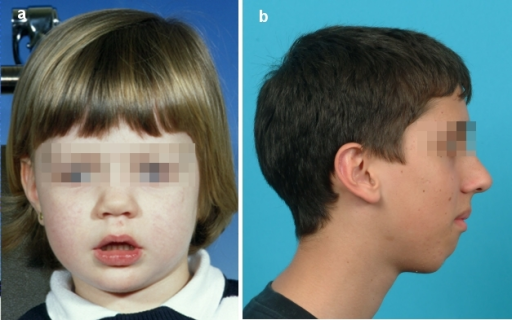 "a) Patient with ""adenoid facies"" (open lip posture, 