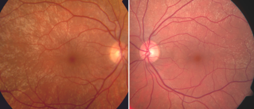 Fundus photography in a healthy male patient demonstrating the presence of bilateral tapetal-like reflex.