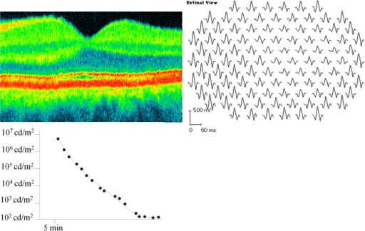 Dark adaptometry (lower left panel), optical coherence tomography (upper left panel), and multifocal electroretinography (upper right panel) in the male patient with a tapetal-like reflex, demonstrating no obvious abnormality of retinal function or structure. The following abbreviations apply: cd is short for candela, m2 is short for square meter, ms is short for millisecond and nV is short for nanovolt.