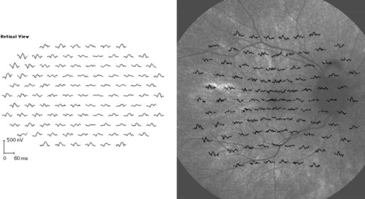 Multifocal electroretinography (left panel) and overlay of multifocal electroretinography focal responses on fundus autofluorescence photography (right panel) in the 33-year-old female carrier of X-linked retinitis pigmentosa whose fundus is presented in Figure 6. Patchy retinal dysfunction compatible with random X inactivation, and a patchy variability in fundus autofluorescence intensity is demonstrated. Areas of remaining autofluorescence seem to correspond to areas of remaining responses by multifocal electroretinography. The following abbreviations apply: ms is short for millisecond and nV is short for nanovolt.