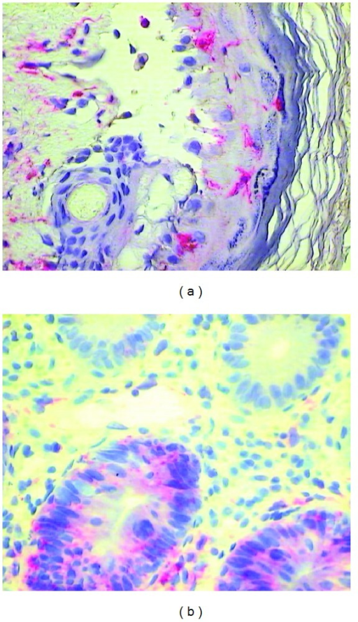 (a) HLA-DR expression on antigen presenting cells in the epidermis of the skin (+60 days after HSCT) and (b) HLA-DR expression on colon epithelial cells (+33 days after HSCT) affected by aGvHD (red staining with Permanent Red, magnifications 400x).