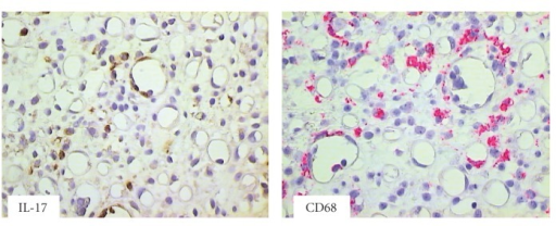 Colon biopsy specimen harvested at day 63 after HSCT from patient with clinical symptoms of aGvHD. IL-17 producing cells and macrophages CD68+ were seen within cellular infiltrates (brown staining with diaminobenzidine-tetrahydrochloride (DAB) and red staining with Permanent Red, magnifications 400x).