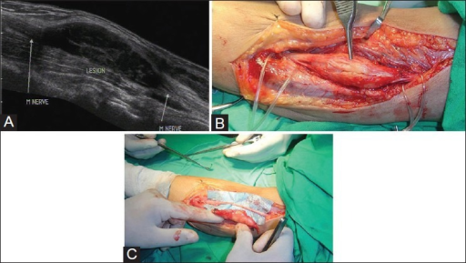 (A) Longitudinal USG image showing a fusiform predominantly hypoechoic mass lesion along the median nerve in forearm. The nerve can be located eccentrically along the ventral aspect of the mass lesion, suggesting the diagnosis of schwannoma (B) Intraoperative image of the lesion confirming the ultrasound findings (C) Intraoperative image after excision of the mass lesion with preservation of the nerve