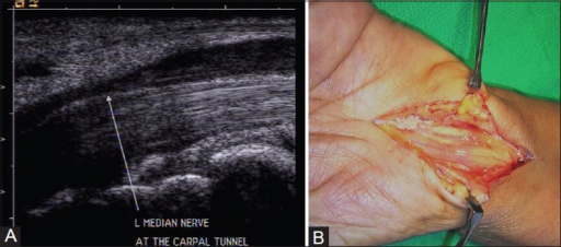 (A) Longitudinal USG image reveals abrupt change in the caliber of median nerve at the entrance of carpal tunnel (notch sign) in carpal tunnel syndrome. The nerve also shows hypoechoic appearance (B) Intraoperative image confirming the ultrasound findings