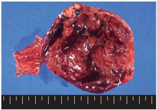 The cut surface of the tumor shows a well circumscribed mass with extensive hemorrhagic necrosis at the center. Solid areas (tan-gray colored regions) are noted at the periphery.