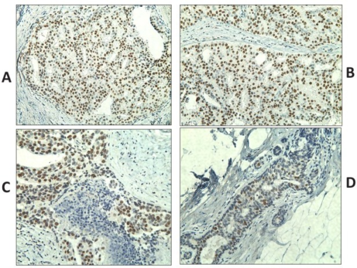 Immunohistochemistry staining of DCIS samples using monoclonal antibody specific to NY-ESO-1 (clone E978) (shown in brown)Sections presented variable cytoplasmic and nuclear NY-ESO-1 staining, typically showing either focal and scattered positive cells (A and B) or intense and diffuse positivity (C and D) in >90% of tumor cells. Original magnification, ×200.