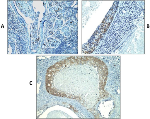 Immunohistochemistry staining of DCIS samples using monoclonal antibody specific to MAGEA (clone 6C1) (shown in brown)Sections presented variable cytoplasmic MAGEA staining, typically showing either focal and scattered positive cells (A and B) or intense and diffuse positivity (C) in >90% of tumor cells. Original magnification, ×200.