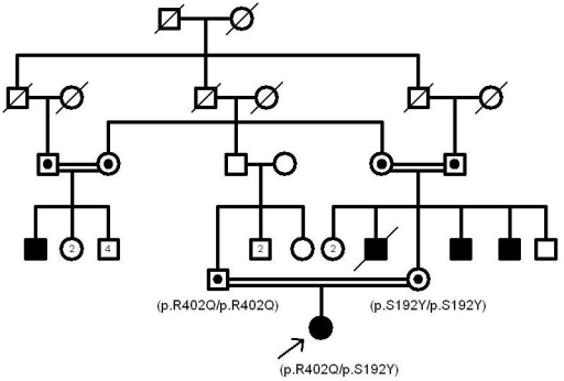 The pedigree of patient 4. The nonpathogenic nature of p.R402Q and p.S192Y can be inferred from the above pedigree in which the patient's parents do not show any albinism features.