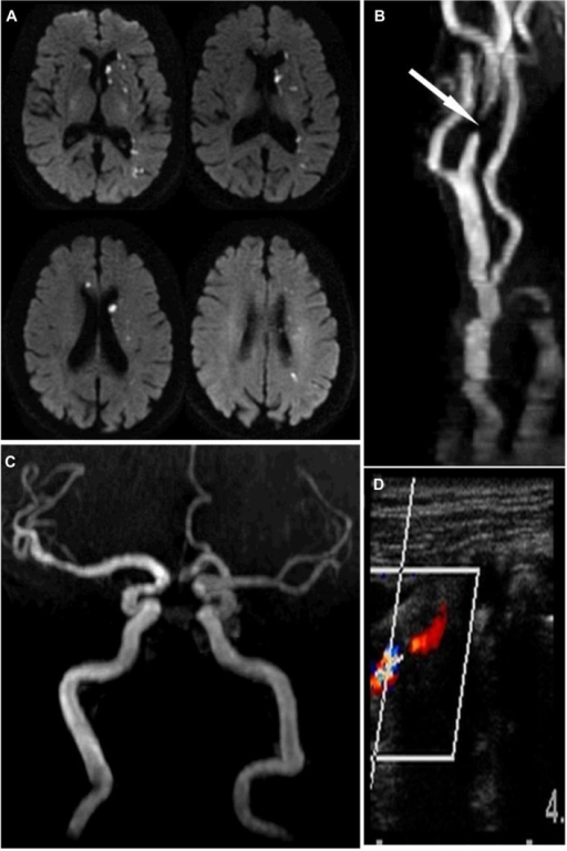 Stroke and extracranial carotid atherosclerosis.Notes: A man in his 90s came to the hospital with sudden onset of right-sided weakness and difficulty finding words. On exam, he was found aphasic with mild right-sided hemiparesis. (A) A brain magnetic resonance image showed evidence of scattered infarcts over the left hemisphere and a small infarct in the territory of the right anterior cerebral artery. (B) The neck magnetic resonance angiograph showed a flow gap in the left extracranial proximal internal carotid artery (arrow). (C) The brain magnetic resonance angiograph showed the lack of the right proximal segment of the anterior cerebral artery, thus explaining the presence of bi-hemispheric infarcts attributable to left extracranial carotid stenosis through embolization of the anterior communicating artery. (D) A neck artery Doppler confirmed the degree of stenosis (>80%) and the patient underwent carotid endarterectomy and was discharged home after the initial neurological deficits resolved.