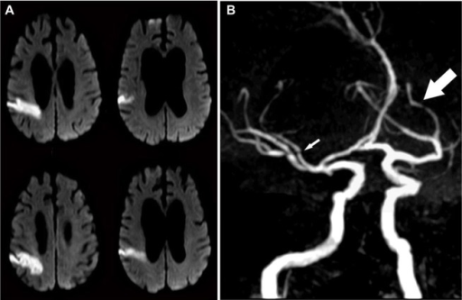 Stroke and intracranial atherosclerosis.Notes: A woman in her 60s came to the hospital for left-sided weakness and headache. On exam, she was found to have mild left pronator drift and visuospatial neglect. (A) The brain magnetic resonance image showed evidence of a right parietal lobe cortical infarct and (B) the brain magnetic resonance angiograph showed evidence of diffuse luminal narrowing of her brain arteries (arrows), with some of these stenoses located proximal to the area of her infarction (small arrow), suggesting artery-to-artery embolism from intracranial large artery stenosis as the most likely stroke mechanism.