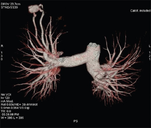 MDCT angiography volume rendered image showing a lobulated vascular malformation with a single feeding vessel originating from pulmonary artery and a single draining vein