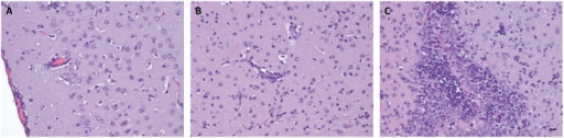 Brain histopathology after ZIKV infection.Cortical tissue revealing meningeal infiltration by a mixture of neutrophils and mononuclear cells. A small amount of a similar infiltrate is seen surrounding an adjacent vessel (A). Cerebral neuropil section will cellular pyknosis, scattered neutrophils, and perivascular neutrophilic infiltration (B). Apparent necrosis and neutrophil invasion of primordial germ cell region (C). Scale bar, 20 μm. Data are representative of two independent experiments (n = 4 and 5).