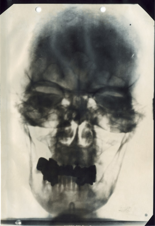 <p>X-ray image of Adolf Hitler's head. Hitler as seen by his doctors, between annex I and III.</p>
