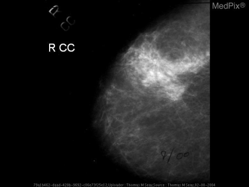 Figure 1: CC view of the right breast with scattered fibroglandular tissue. Focal area of architectural distortion is seen laterally. Lesion was not well seen on MLO view.