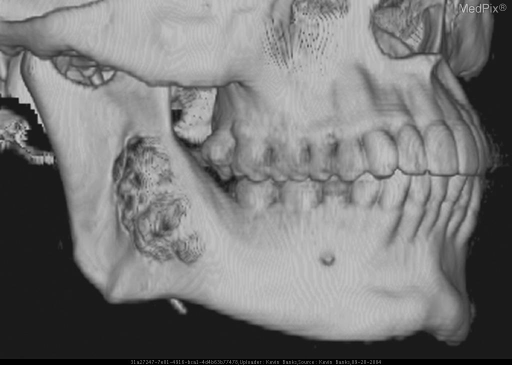 3D reconstruction of the face demonstrates the patient's expansile, multilocular lytic lesion of the right mandible.