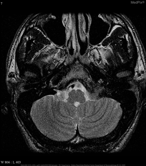 "Multiple MR images demonstrate a dumb-bell-shaped mass at the level of the left jugular foramen, fairly isointense to brain on both T1 and T2 weighted images, which demonstrate homogeneous enhancement on T1-weighted images obtained after the IV administration of gadolinium-DTPA contrast material.  It has mass effect on the underlying medulla.  It also has thickened, enhancing, ""dural tail."""