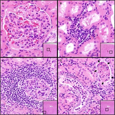 "Histopathologic evaluation of renal tissues from donor cervids.(A) Minimal, chronic and proliferative glomerular disease and (B) mild interstitial fibrosis and lymphocytic infiltration were observed in 4 out of 5 donor deer. The remaining deer showed evidence of mild lymphocytic glomerulonephritis (C) as well as ""tubular proteinosis."" (D, arrows)."