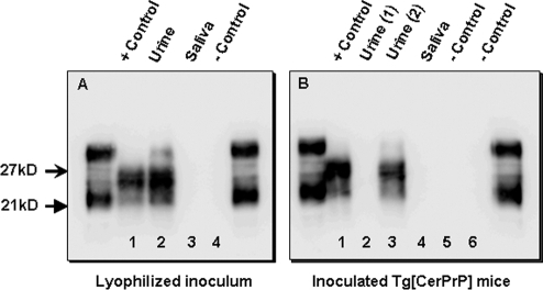 Serial PMCA amplification of PrPCWD in concentrated deer urine and in the brains of urine-inoculated mice.A) PrPCWD was detectable by serial PMCA (sPMCA) in control and urine inocula (lanes 1 and 2, respectively), while PrPCWD could not be identified in saliva and negative control inocula (lanes 3 and 4, respectively) after 3 rounds of amplification. B) Three rounds of sPMCA also amplified PrPCWD in the brains of CWD-infected mice, including positive-control inoculated mice and a single mouse inoculated with lyophilized urine (lanes 1 and 3, respectively). PrPCWD was not amplified in mice inoculated with negative control material (lanes 5 and 6) or in other mice inoculated with either urine (lane 2) or saliva (lane 4) from CWD+ deer. All flanking lanes represent undigested PrPC.