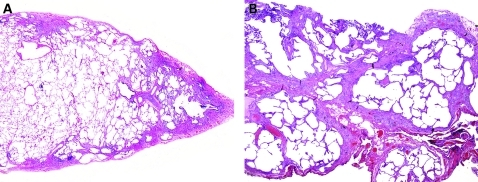 "Usual interstitial pneumonia (UIP). UIP is characterised by zones of normal lung tissue adjacent to zones of advanced architectural remodelling (temporal heterogeneity). (A) Early in the disease process, an interrupted ""rind"" of subpleural fibrosis is visible. (B) A more advanced stage shows more extensive perilobular fibrosis with relative centrilobular sparing, producing ring-like scarring at scanning magnification. (A,B) H&E stain, 1× original magnification."