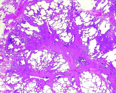 Airway-centred fibrosis. Fibrosis around bronchioles is typically a manifestation of inhalational or aspiration injury to the lungs. H&E stain, 15× original magnification.