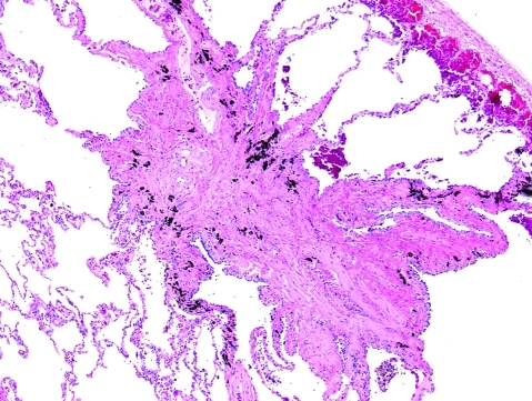 Langerhans cell histiocytosis (LCH). The star-shaped, airway-centred scars of LCH are distinctive and may be a sign of resolved disease. H&E stain, 15× original magnification.