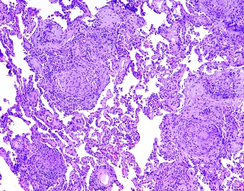 Granulomatous pneumonia from infection. This example of atypical mycobacterial infection (Mycobacterium avium complex) differs from hypersensitivity pneumonitis in having larger and better formed granulomas, along with more granulomas in the alveolar spaces and alveolar ducts. Necrosis in granulomas may be present (not in this image) and is a harbinger of infection. Sarcoidosis granulomas (fig 25) are better formed, have less associate inflammation, and consistently have more hyaline fibrosis around aggregated granulomas. H&E stain, 40× original magnification.