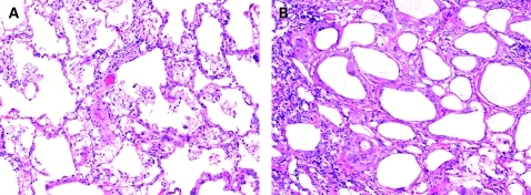 Exogenous lipoid pneumonia. The microscopic appearance of exogenous lipoid pneumonia is dependent on the composition of the aspirated material. (A) Exogenous lipoid pneumonia with histiocytes containing predominantly fine microvesicles. (B) Exogenous lipoid pneumonia with larger vacuoles and associated fibrosis. (A,B) H&E stain, 40× original magnification.