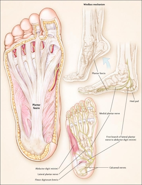 plantar fascia steroid injection cpt code